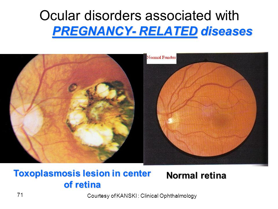 71 PREGNANCY- RELATED diseases Ocular disorders associated with PREGNANCY- RELATED diseases Normal retina Toxoplasmosis lesion in center of retina Cou