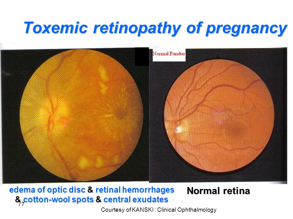 77 Toxemic retinopathy of pregnancy edema of optic disc & retinal hemorrhages & cotton-wool spots & central exudates Courtesy of KANSKI : Clinical Oph