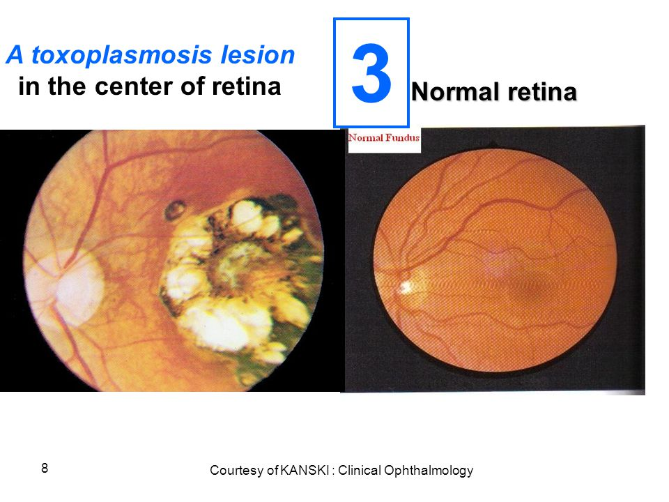 8 Normal retina Courtesy of KANSKI : Clinical Ophthalmology A toxoplasmosis lesion in the center of retina 3
