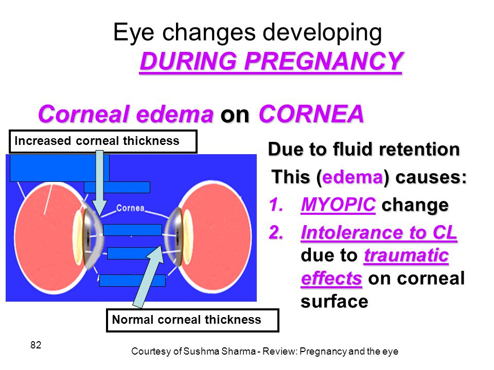 82 DURING PREGNANCY Eye changes developing DURING PREGNANCY Due to fluid retention This (edema) causes: change 1.MYOPIC change 2.Intolerance to CL tra