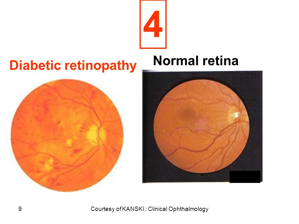 50 PRE-EXISTING The effects of pregnancy on PRE-EXISTING ocular disorders Diabetic retinopathy Graves' diseas Glaucoma Uveitis