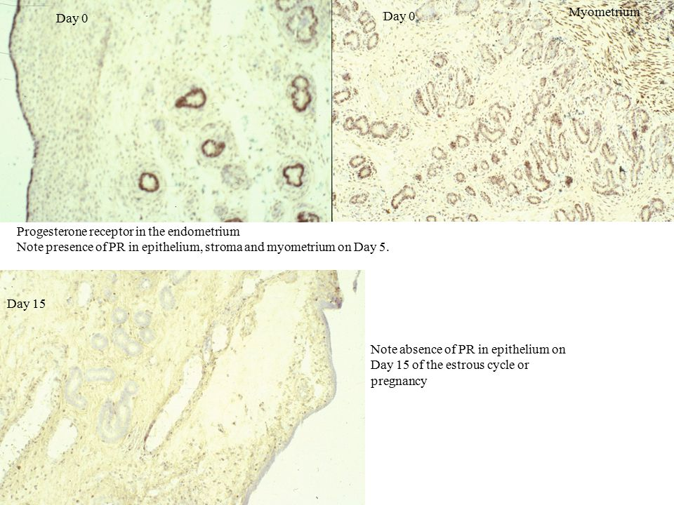 Progesterone receptor in the endometrium Note presence of PR in epithelium, stroma and myometrium on Day 5.