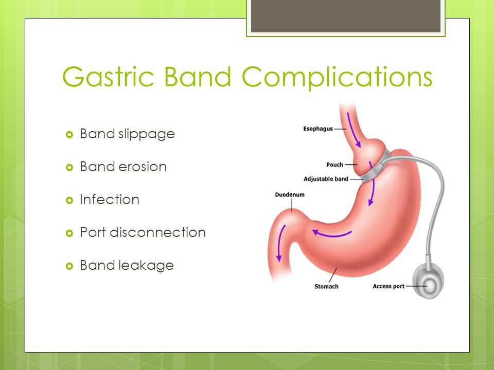Gastric Band Complications  Band slippage  Band erosion  Infection  Port disconnection  Band leakage