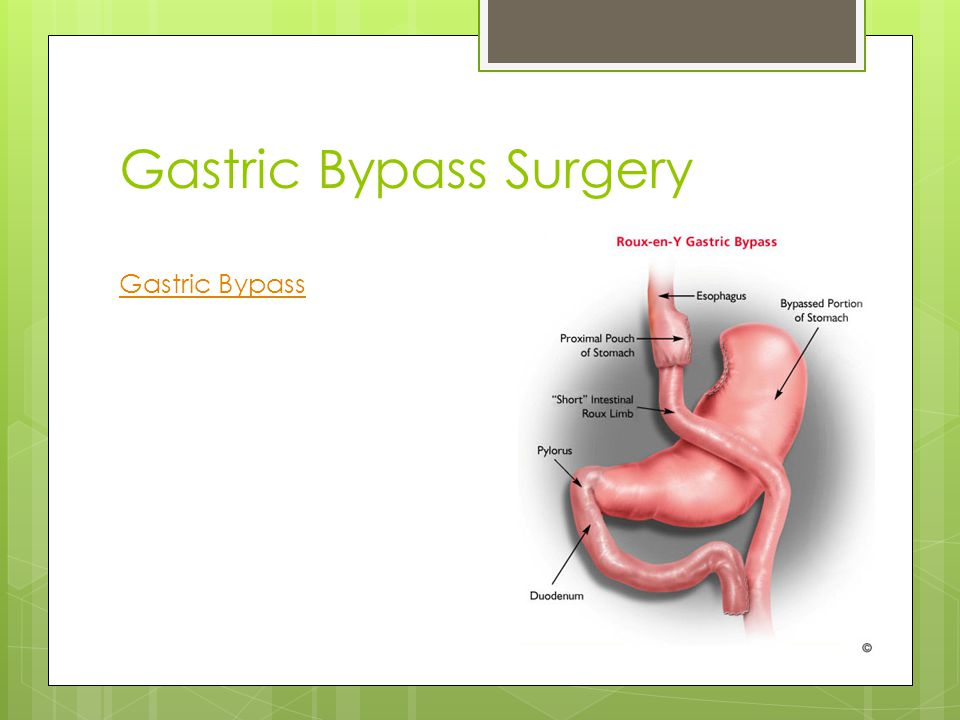 Gastric Bypass Surgery Gastric Bypass