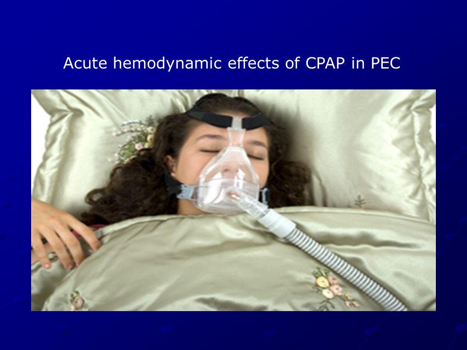 Acute hemodynamic effects of CPAP in PEC