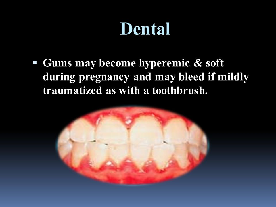 Dental  Gums may become hyperemic & soft during pregnancy and may bleed if mildly traumatized as with a toothbrush.