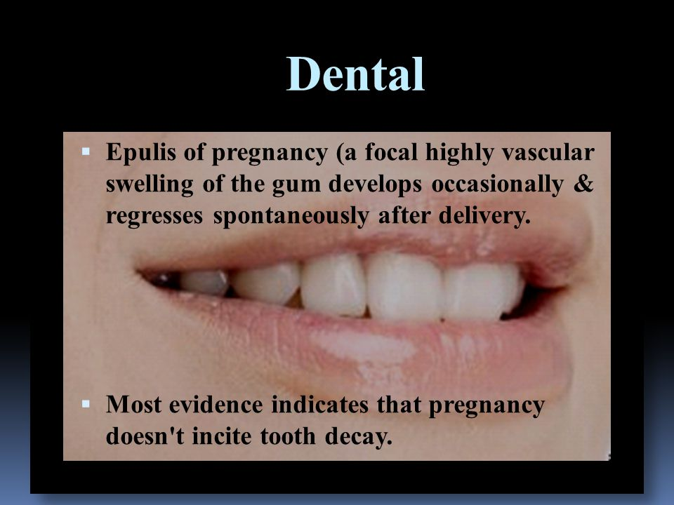 Dental  Epulis of pregnancy (a focal highly vascular swelling of the gum develops occasionally & regresses spontaneously after delivery.  Most evide