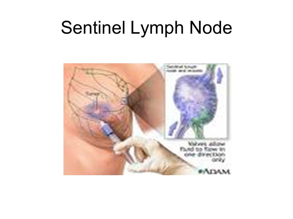 Sentinel Lymph Node