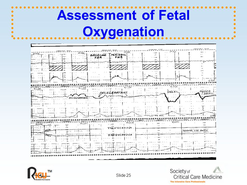 Slide 25 Assessment of Fetal Oxygenation