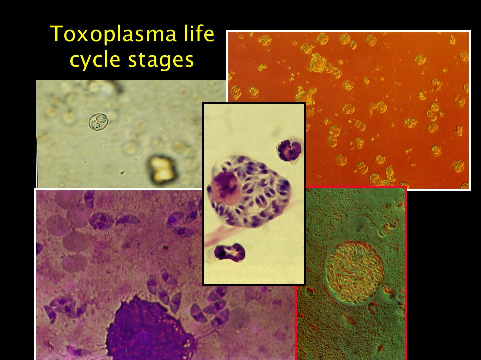 Toxoplasma life cycle stages