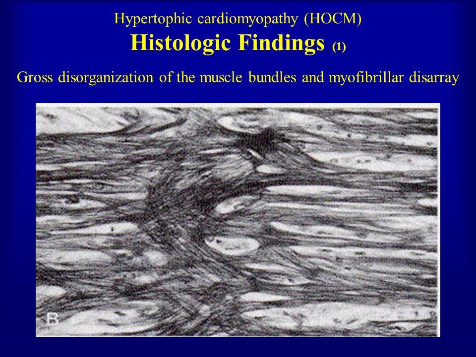 19 Hypertrophic cardiomyopathy (HOCM)