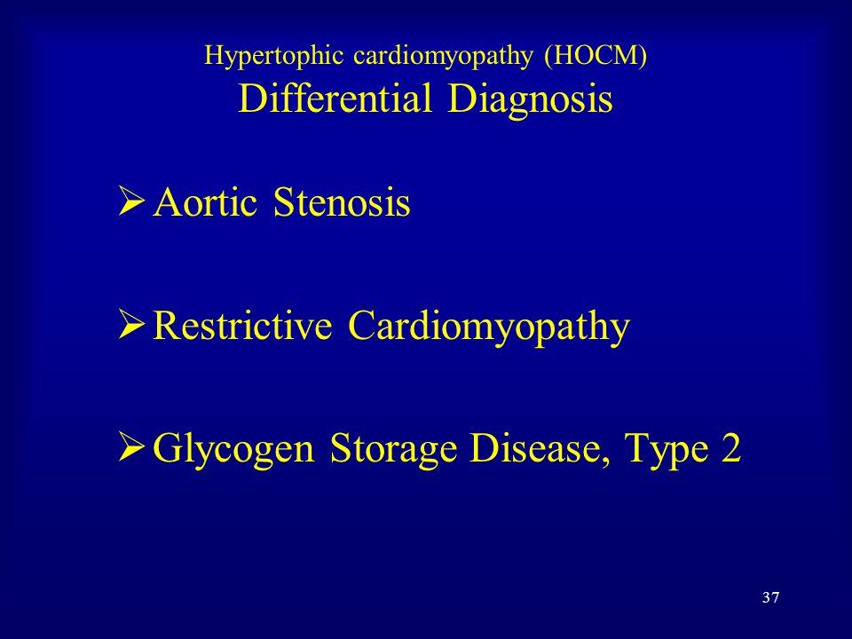 36 CXR HOCM Cardiac enlargement > 1/2 thoracic width