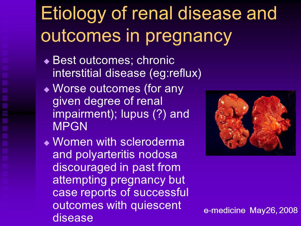 Etiology of renal disease and outcomes in pregnancy   Best outcomes; chronic interstitial disease (eg:reflux)   Worse outcomes (for any given degr
