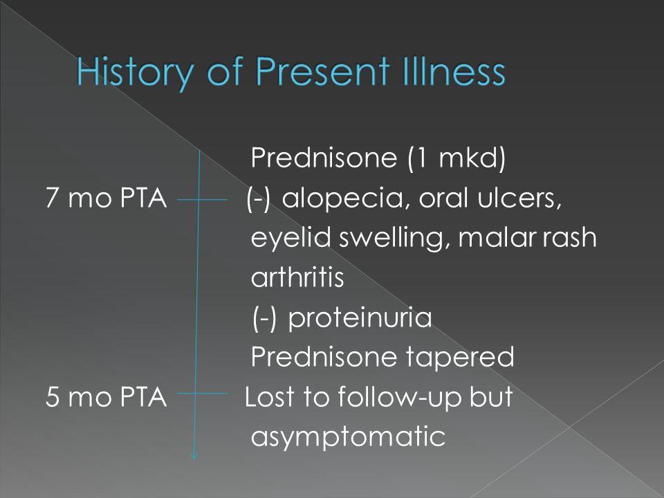 Prednisone (1 mkd) 7 mo PTA (-) alopecia, oral ulcers, eyelid swelling, malar rash arthritis (-) proteinuria Prednisone tapered 5 mo PTA Lost to follo