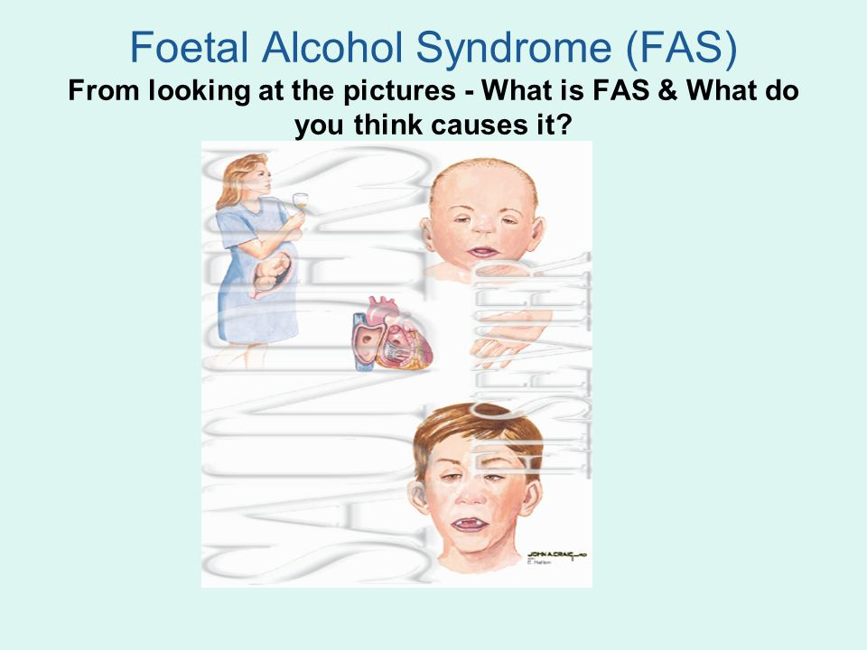 Foetal Alcohol Syndrome (FAS) From looking at the pictures - What is FAS & What do you think causes it