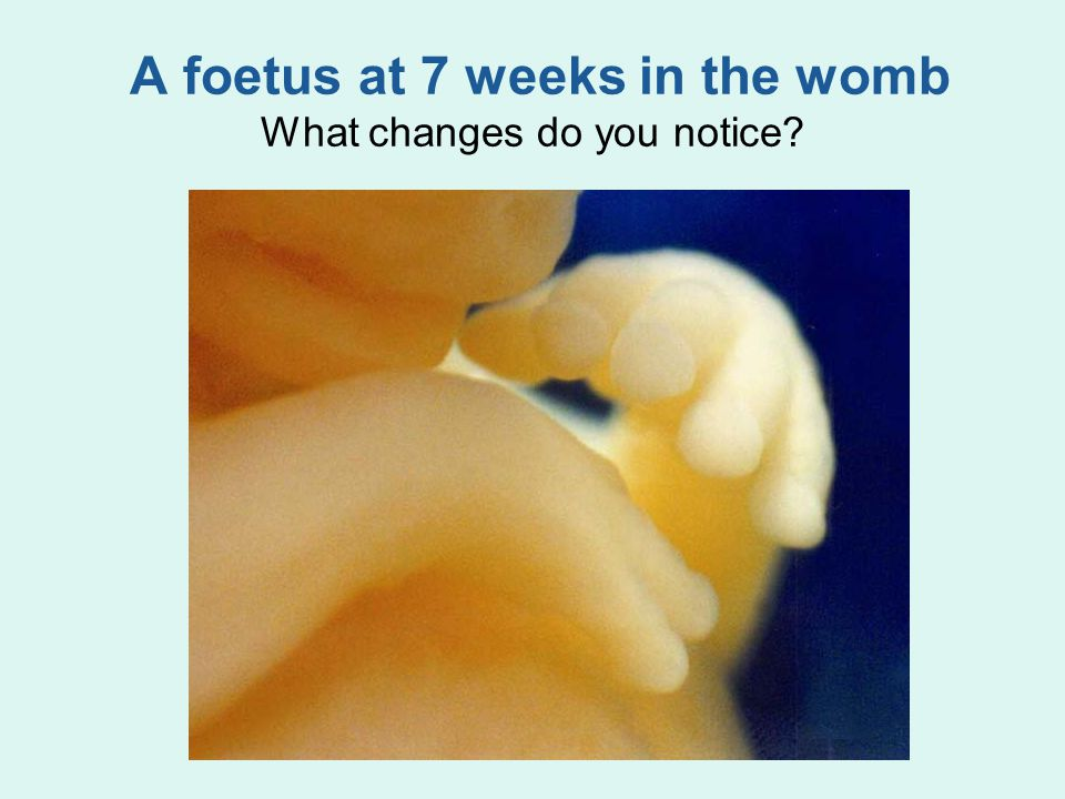 A foetus at 7 weeks in the womb What changes do you notice