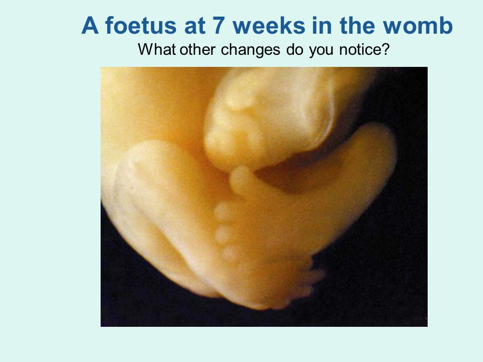 A foetus at 7 weeks in the womb What other changes do you notice