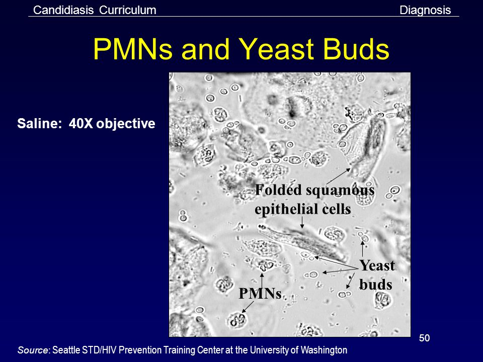 50 PMNs and Yeast Buds Folded squamous epithelial cells Yeast buds PMNs Saline: 40X objective Source: Seattle STD/HIV Prevention Training Center at the University of Washington Candidiasis CurriculumDiagnosis