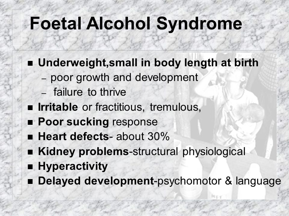 Foetal Alcohol Syndrome n Underweight,small in body length at birth – poor growth and development – failure to thrive n Irritable or fractitious, trem