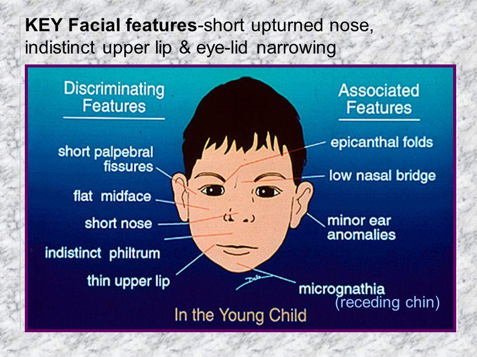 KEY Facial features-short upturned nose, indistinct upper lip & eye-lid narrowing (receding chin)