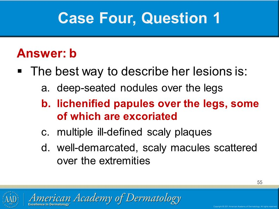 Case Four, Question 1 Answer: b  The best way to describe her lesions is: a.deep-seated nodules over the legs b.lichenified papules over the legs, so