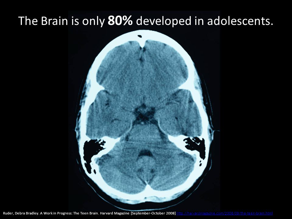 The Brain is only 80% developed in adolescents. Ruder, Debra Bradley.