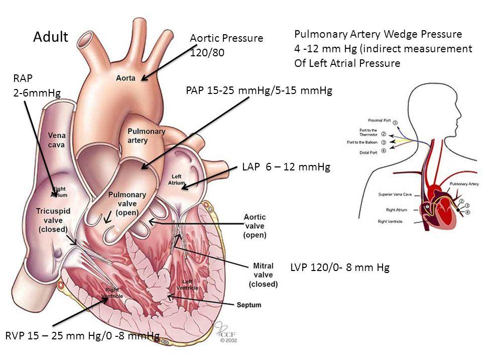 RAP 2-6mmHg PAP 15-25 mmHg/5-15 mmHg RVP 15 – 25 mm Hg/0 -8 mmHg LAP 6 – 12 mmHg LVP 120/0- 8 mm Hg Pulmonary Artery Wedge Pressure 4 -12 mm Hg (indir