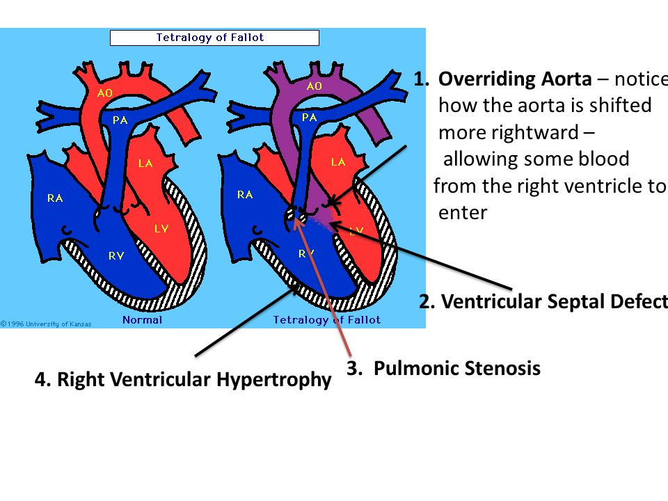 1.Overriding Aorta – notice how the aorta is shifted more rightward – allowing some blood from the right ventricle to enter 2. Ventricular Septal Defe