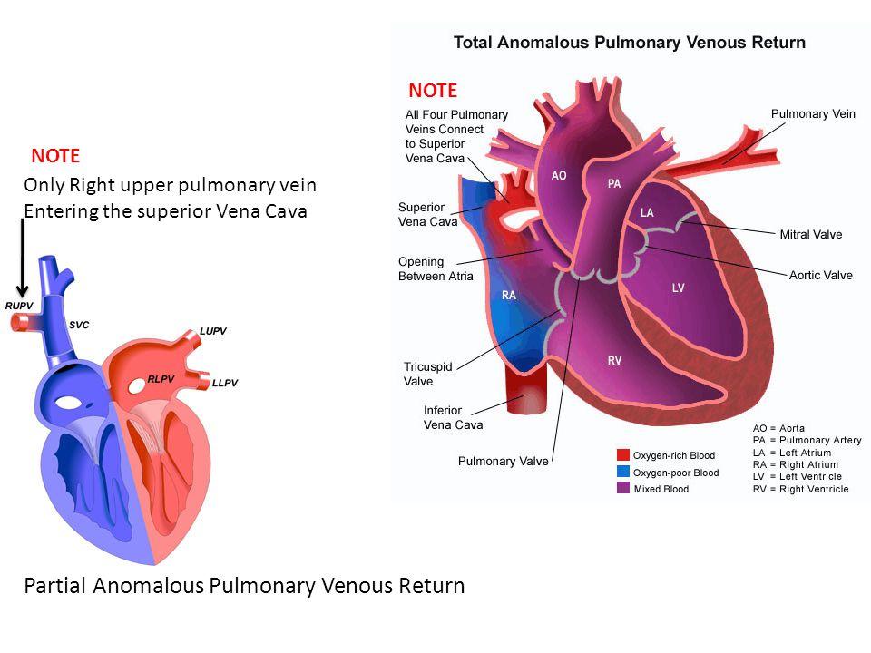 Partial Anomalous Pulmonary Venous Return Only Right upper pulmonary vein Entering the superior Vena Cava NOTE