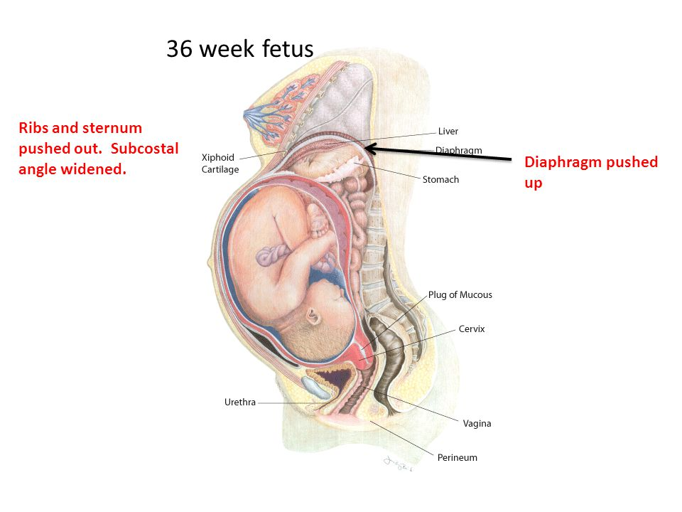 Diaphragm pushed up 36 week fetus Ribs and sternum pushed out. Subcostal angle widened.