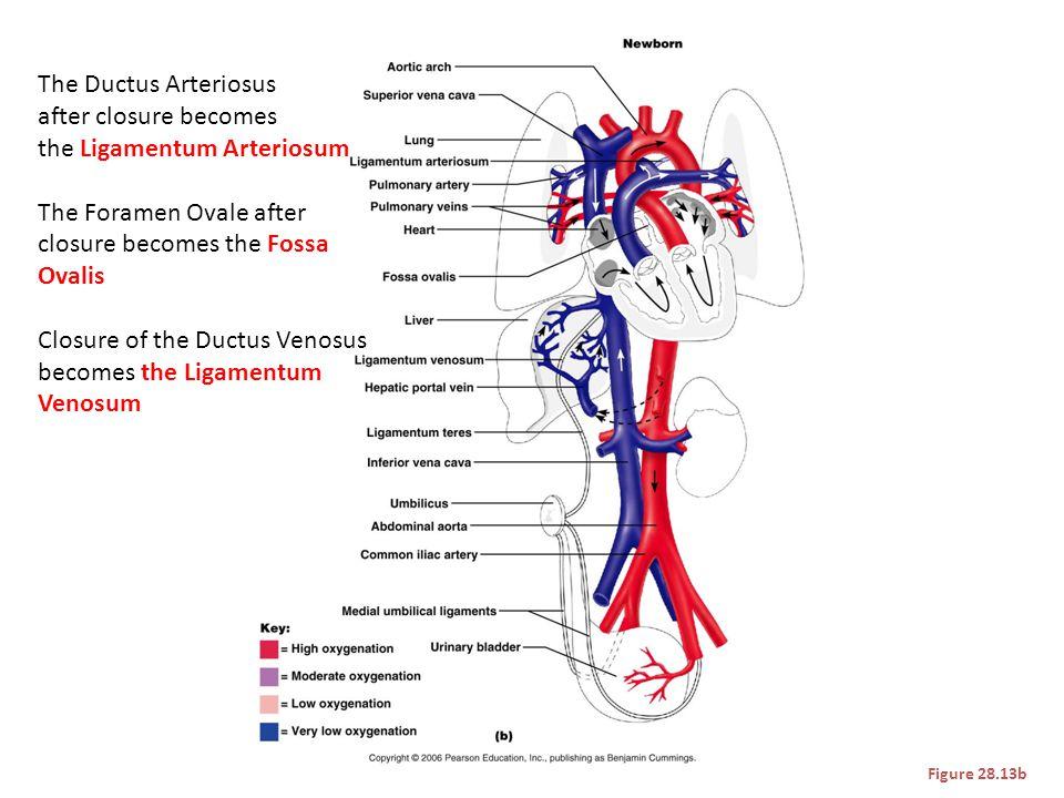 Figure 28.13b The Ductus Arteriosus after closure becomes the Ligamentum Arteriosum The Foramen Ovale after closure becomes the Fossa Ovalis Closure o