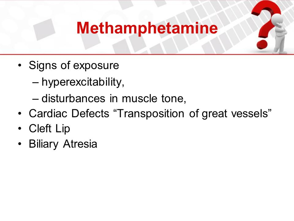"Methamphetamine Signs of exposure –hyperexcitability, –disturbances in muscle tone, Cardiac Defects ""Transposition of great vessels"" Cleft Lip Biliary"