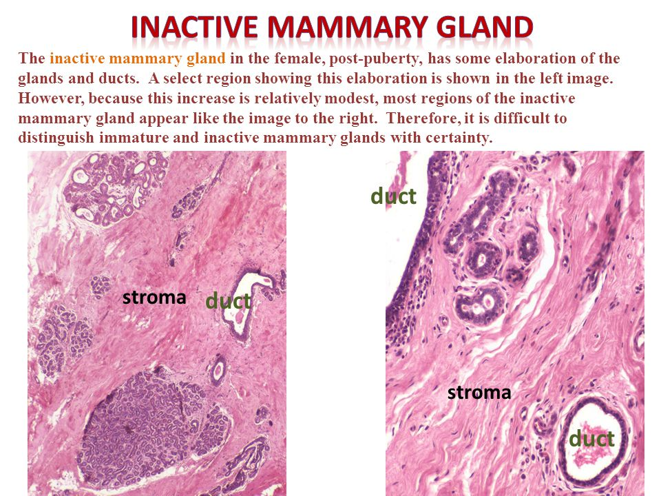 Self-check: Identify. (advance slides for answers) Mammary gland of pregnancy