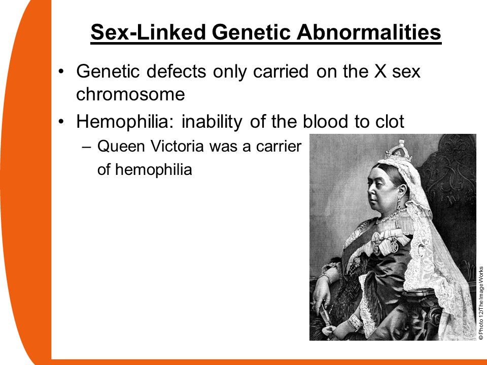 Sex-Linked Genetic Abnormalities Genetic defects only carried on the X sex chromosome Hemophilia: inability of the blood to clot –Queen Victoria was a carrier of hemophilia © Photo 12/The Image Works