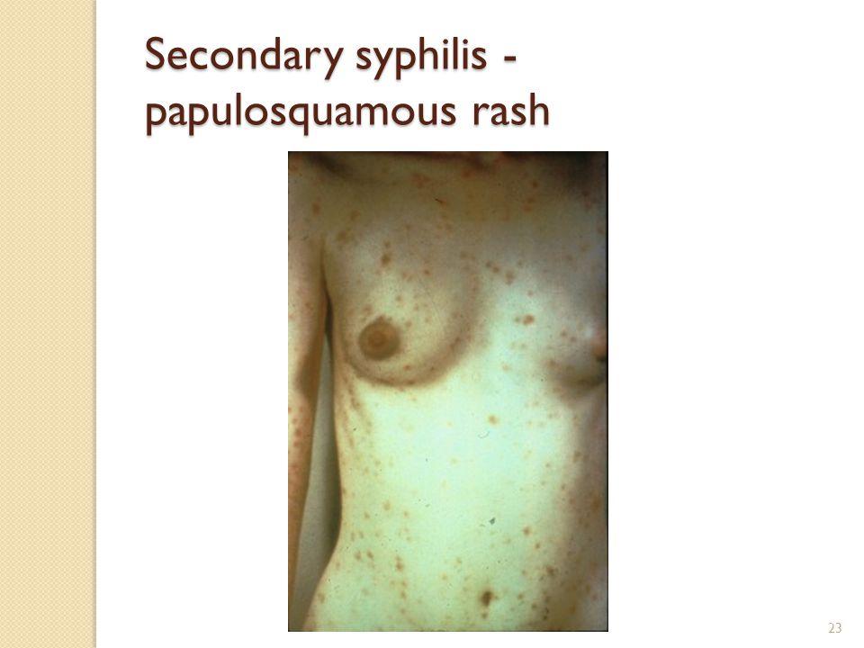 23 Secondary syphilis - papulosquamous rash
