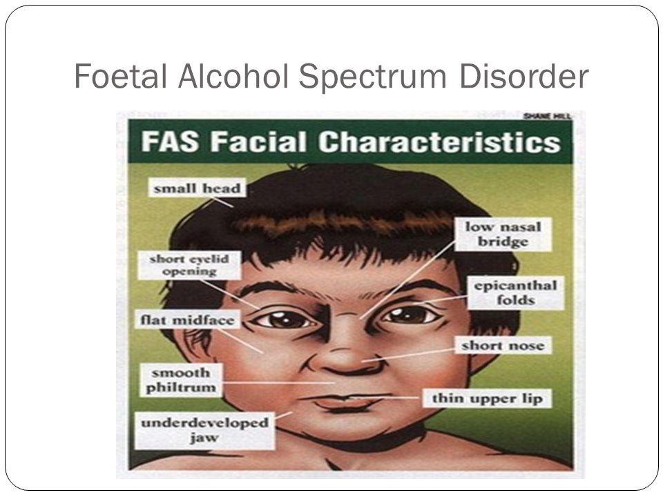 Foetal Alcohol Spectrum Disorder