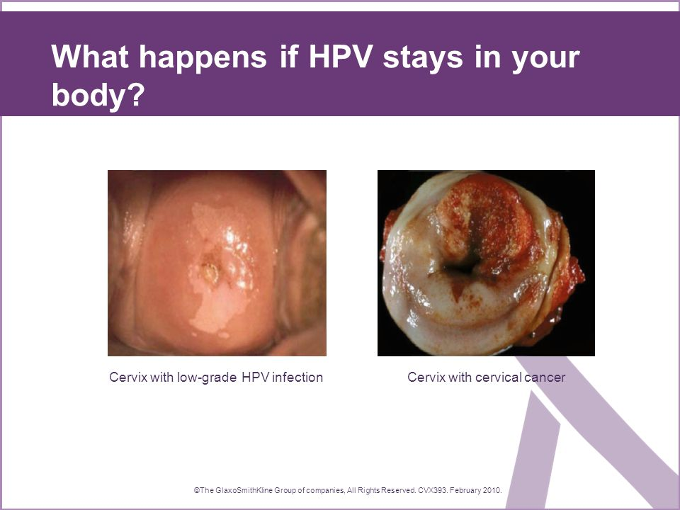 What happens if HPV stays in your body.