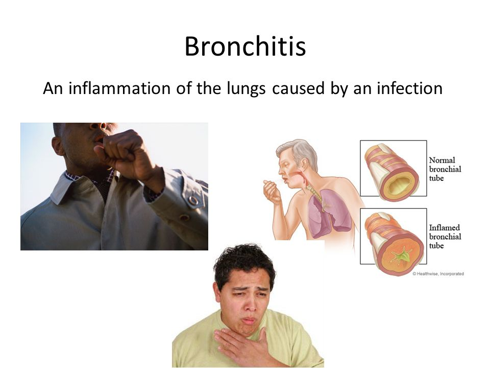 Bronchitis An inflammation of the lungs caused by an infection