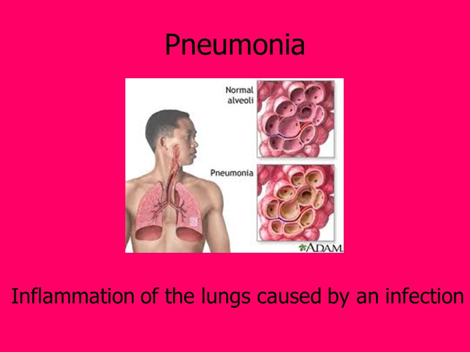 Pneumonia Inflammation of the lungs caused by an infection