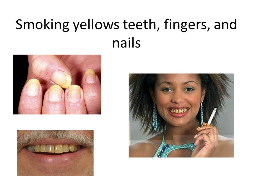 Smoking yellows teeth, fingers, and nails
