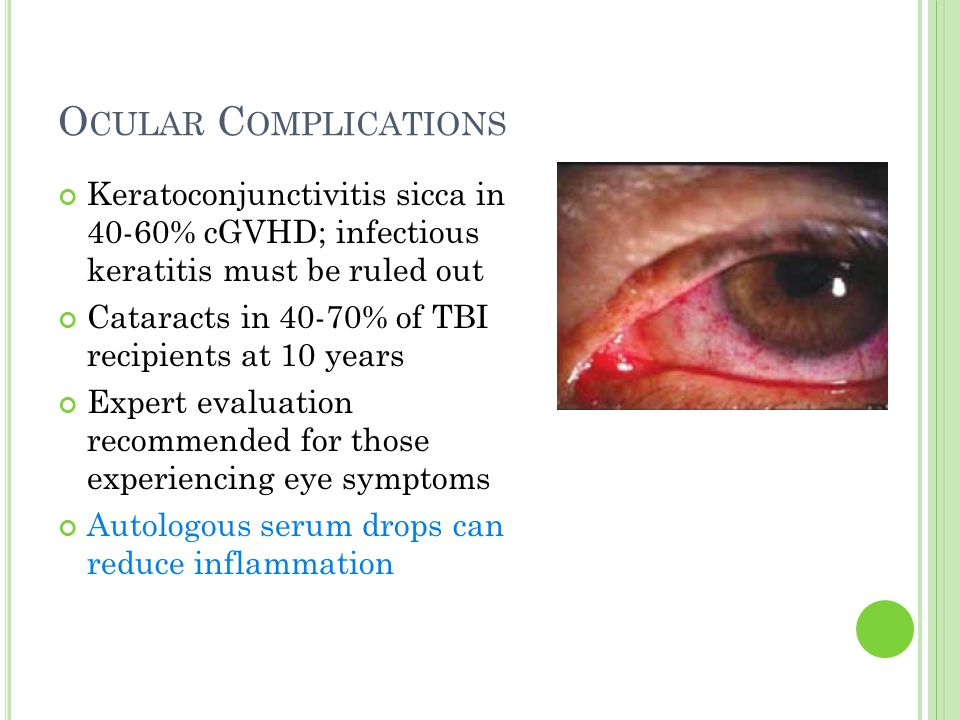 O CULAR C OMPLICATIONS Keratoconjunctivitis sicca in 40-60% cGVHD; infectious keratitis must be ruled out Cataracts in 40-70% of TBI recipients at 10