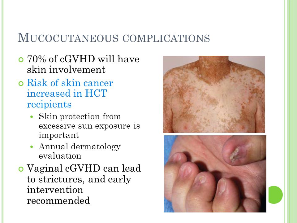 M UCOCUTANEOUS COMPLICATIONS 70% of cGVHD will have skin involvement Risk of skin cancer increased in HCT recipients Skin protection from excessive su
