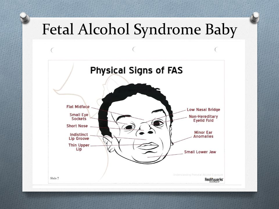 Fetal Alcohol Syndrome Baby