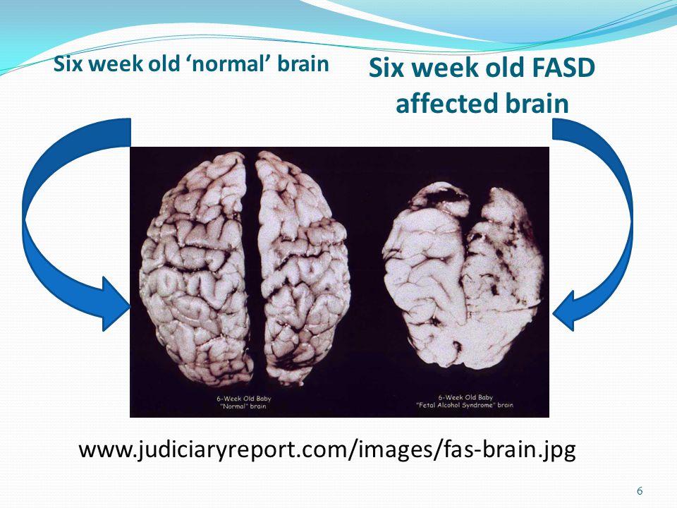 Six week old 'normal' brain 6 Six week old FASD affected brain www.judiciaryreport.com/images/fas-brain.jpg