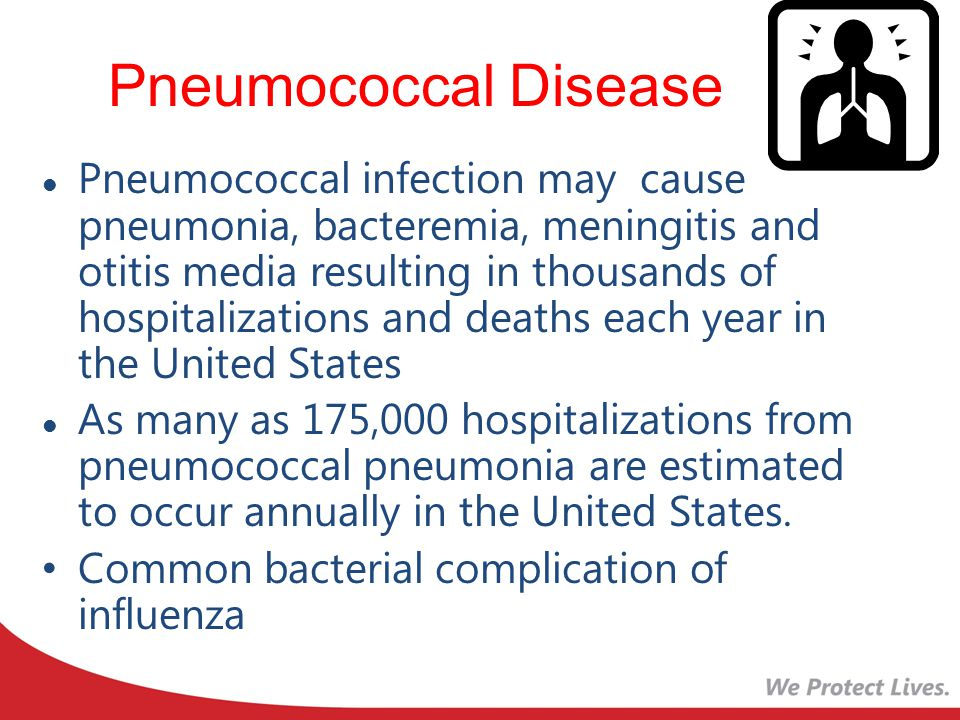 Pneumococcal Disease Pneumococcal infection may cause pneumonia, bacteremia, meningitis and otitis media resulting in thousands of hospitalizations and deaths each year in the United States As many as 175,000 hospitalizations from pneumococcal pneumonia are estimated to occur annually in the United States.