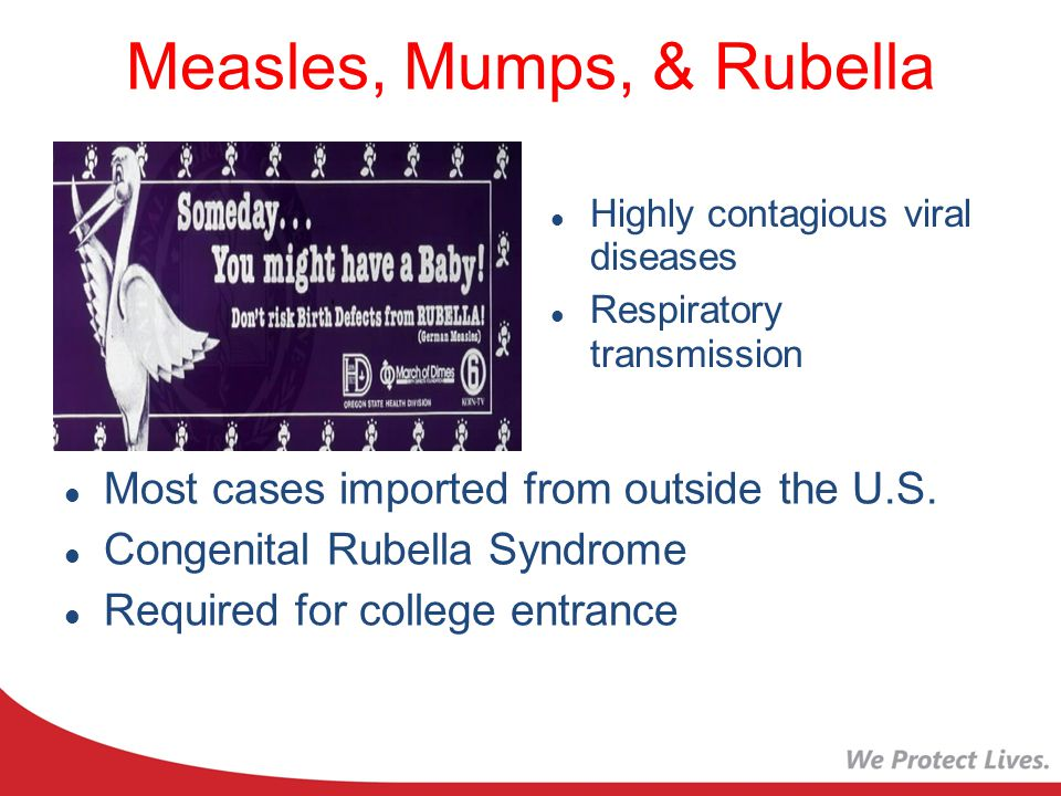 Measles, Mumps, & Rubella Highly contagious viral diseases Respiratory transmission Most cases imported from outside the U.S.