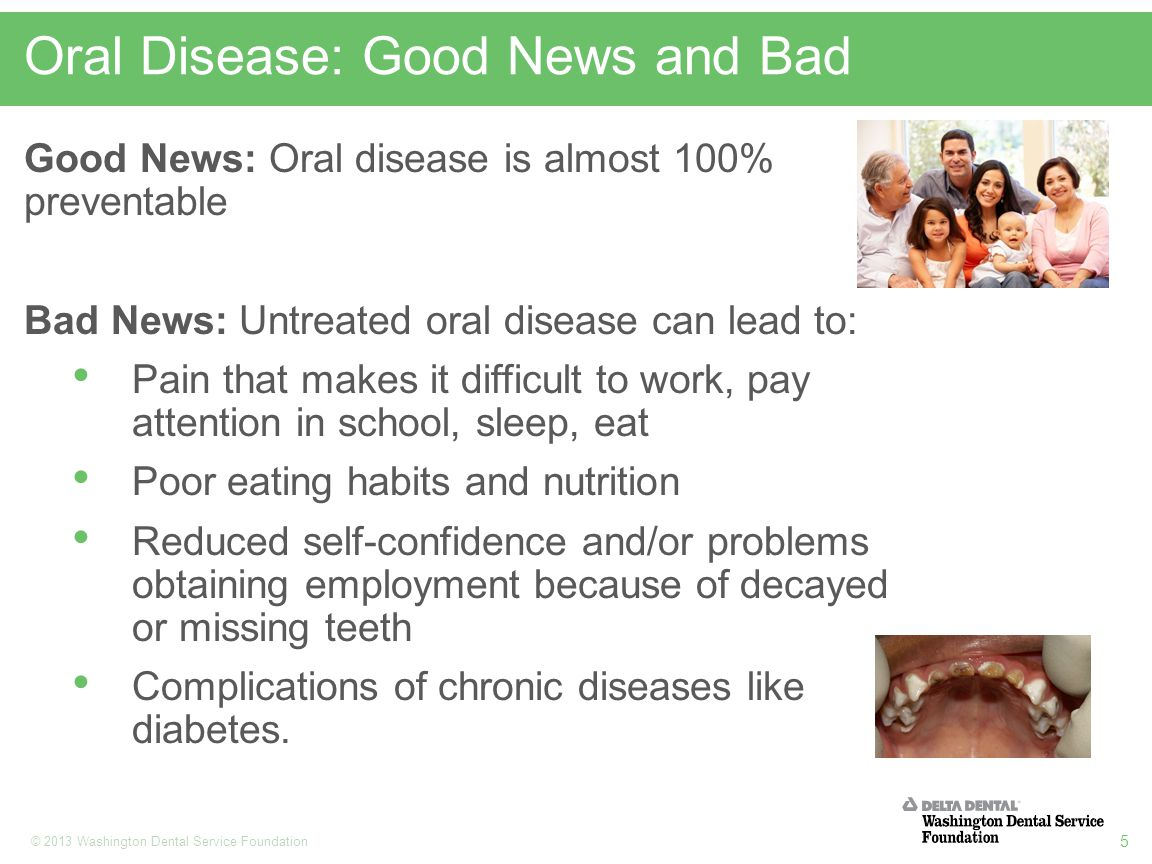 5 © 2013 Washington Dental Service Foundation Oral Disease: Good News and Bad Good News: Oral disease is almost 100% preventable Bad News: Untreated oral disease can lead to: Pain that makes it difficult to work, pay attention in school, sleep, eat Poor eating habits and nutrition Reduced self-confidence and/or problems obtaining employment because of decayed or missing teeth Complications of chronic diseases like diabetes.
