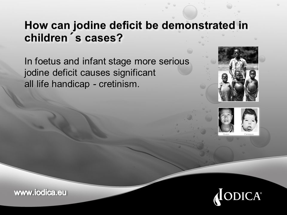 How can jodine deficit be demonstrated in children´s cases.