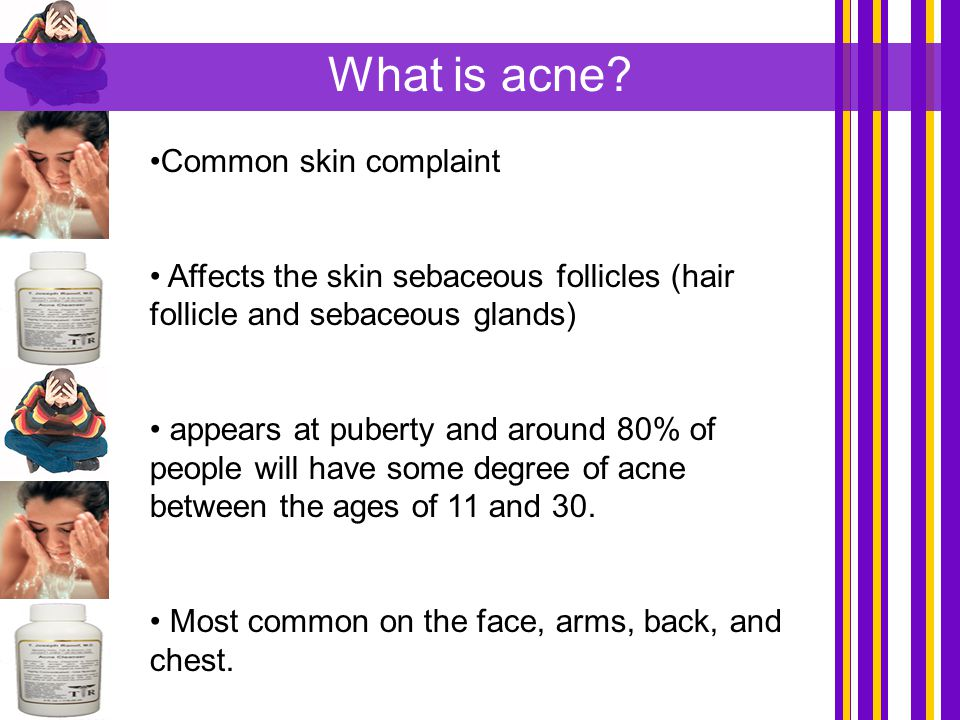 Common skin complaint Affects the skin sebaceous follicles (hair follicle and sebaceous glands) appears at puberty and around 80% of people will have
