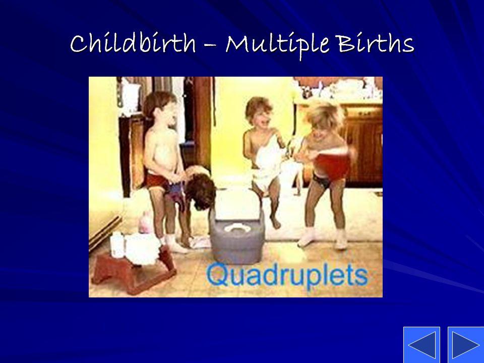 Childbirth – Multiple Births